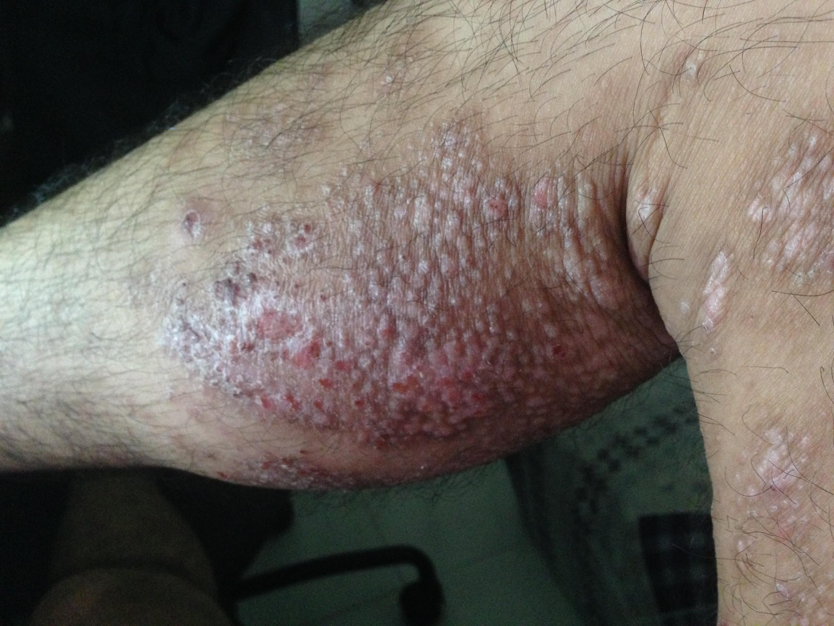 Сhronic spongiotic dermatitis treatment