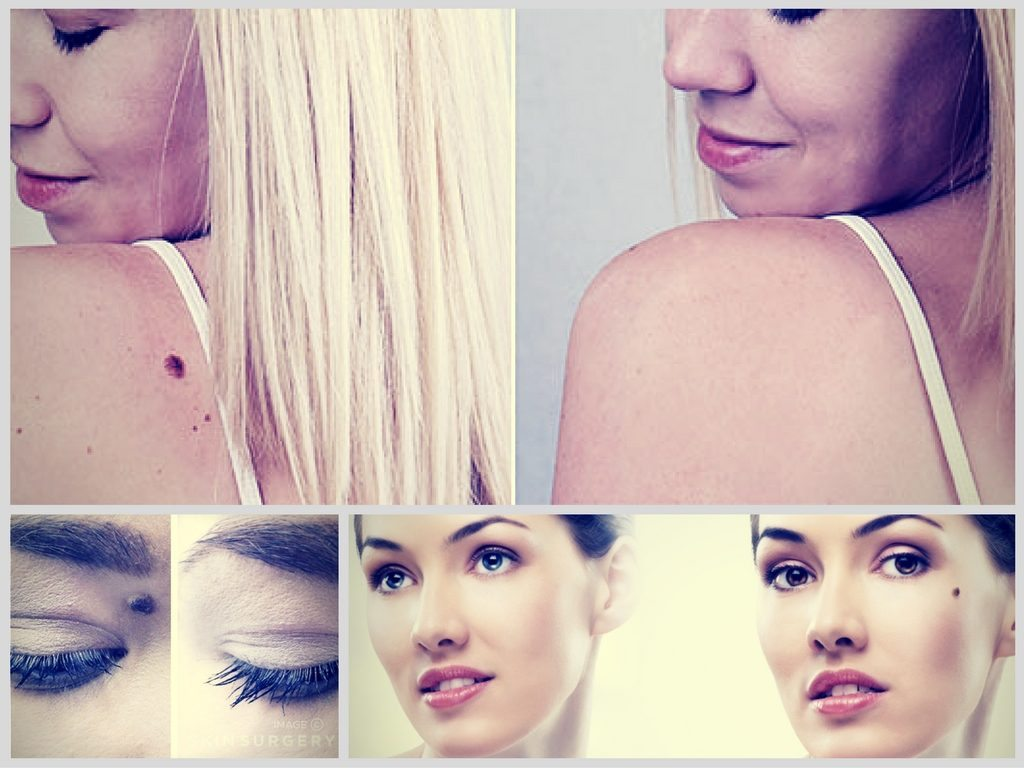 Laser moles removal : before and after