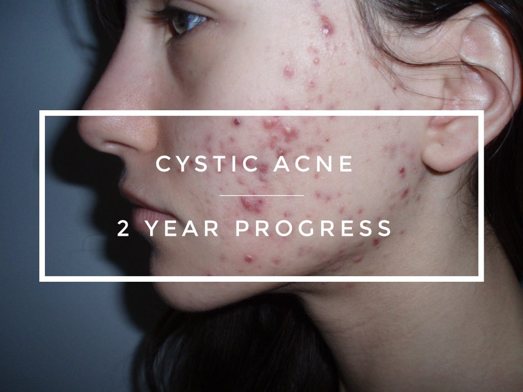 Severe Causes of blind pimples – Cystic Acne