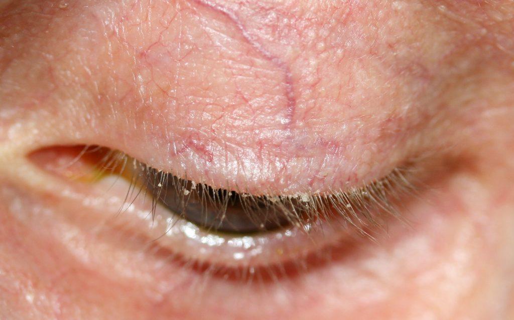 07e0d8e8a98 Eyelid Dermatitis: Treatment and Natural Remedies