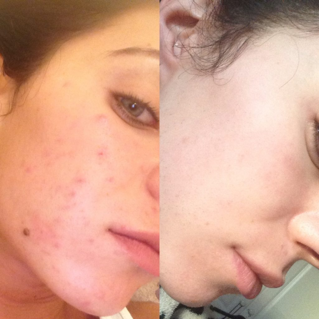 Pimple Under Skin: How to Forget About This Once and for All