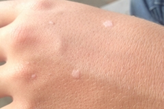 Flat warts on hands