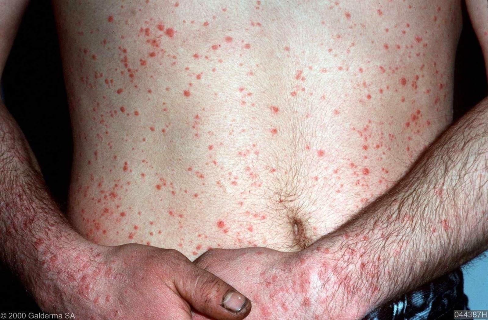 Home Remedies For Psoriasis Skin Disease