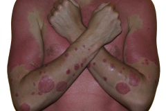 guttate psoriasis on all body
