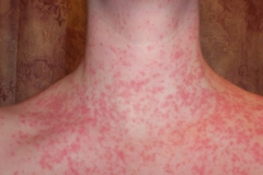 guttate psoriasis on neck