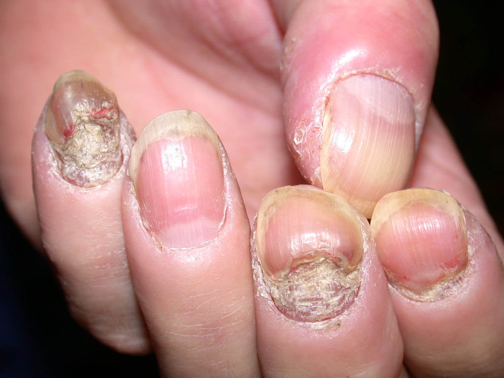 How to treat nail psoriasis and pictures