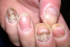 nail psoriasis on fingernails