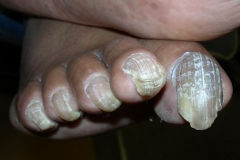 severe nail psoriasis