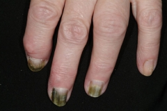 nail psoriasis on hands