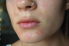 mild Perioral Dermatitis