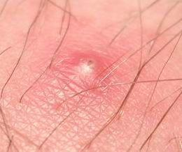 Pimple On Labia Pictures Causes And Treatment