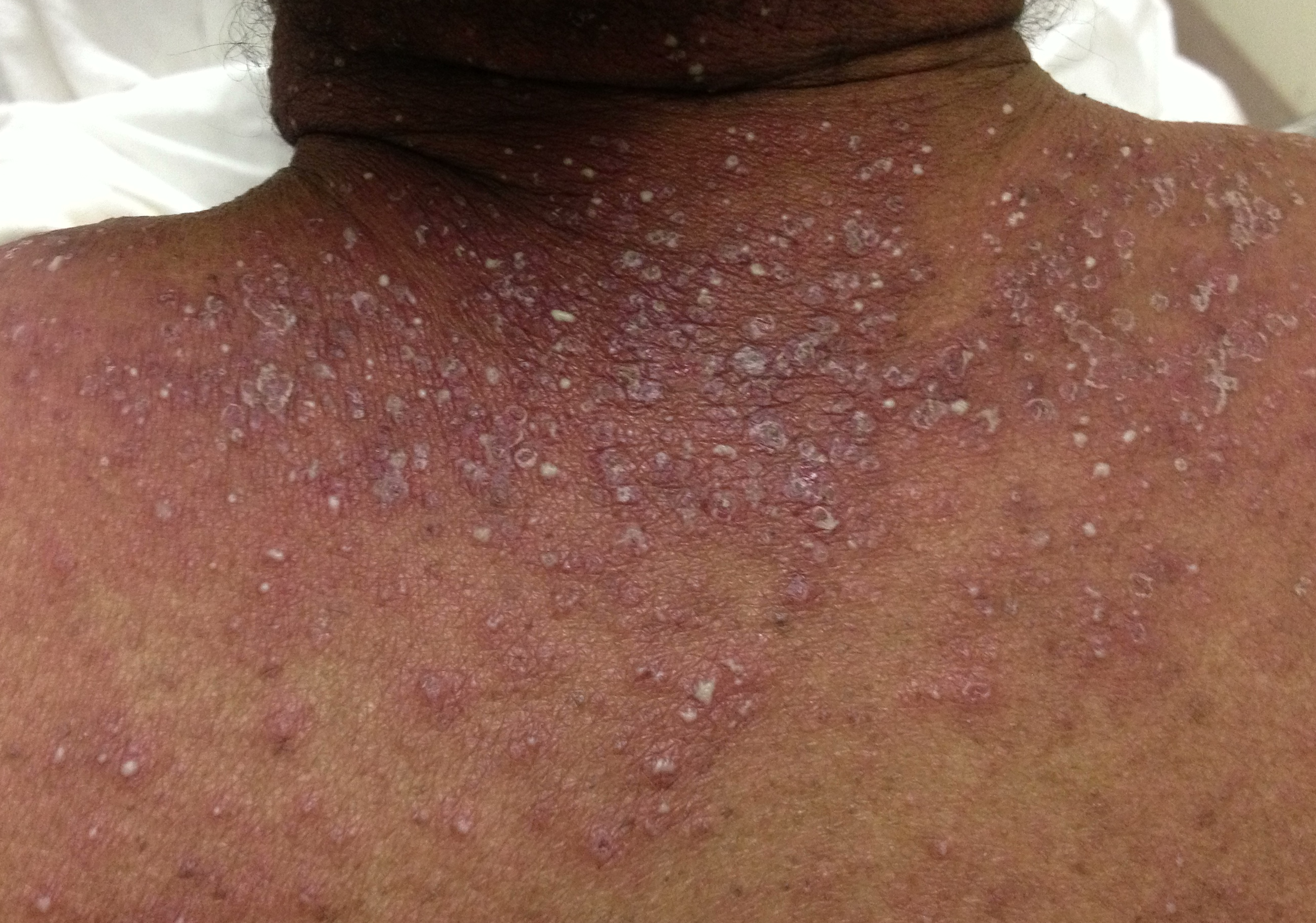 Palmaplanter Pustular Psoriasis Natural Treatment And Pictures