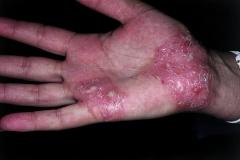 pustular psoriasis on palms