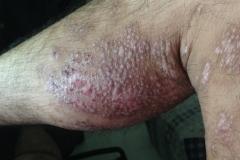 spongiotic dermatitis on arms
