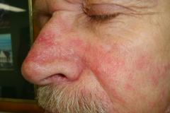 spongiotic dermatitis on face