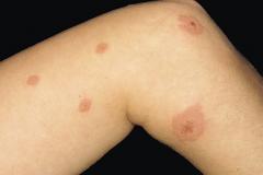 spongiotic dermatitis on leg