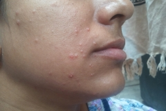 warts on face around the mouth area