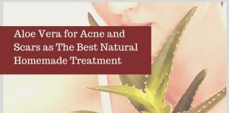 Aloe Vera for Acne