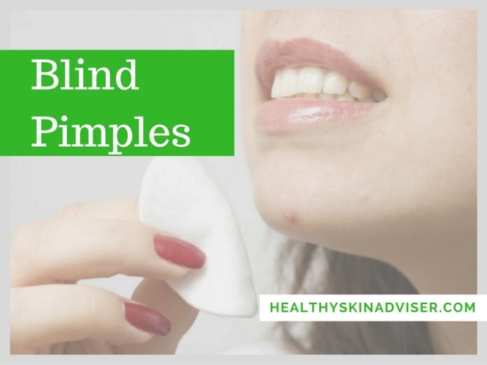 Blind Pimples