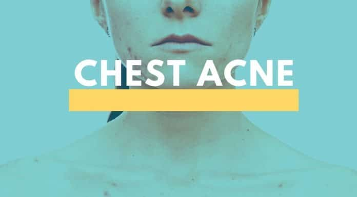 Chest Acne