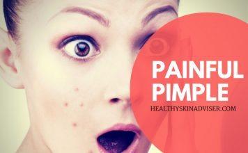 Painful Pimple