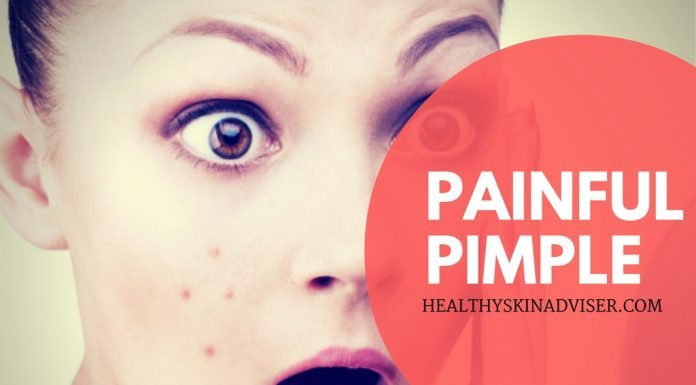 Painful Pimple