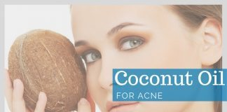 Coconut Oil for Acne