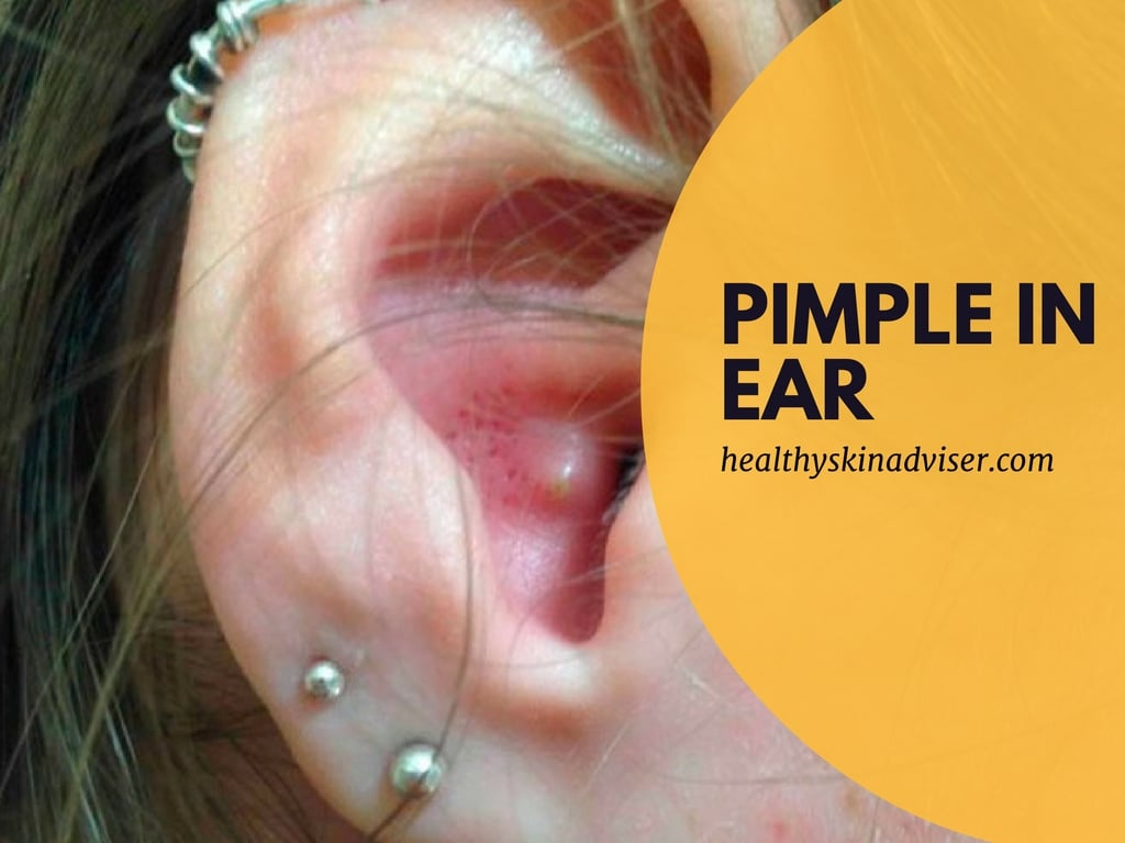 How to get rid of a pimple in ear - How to pop a painful