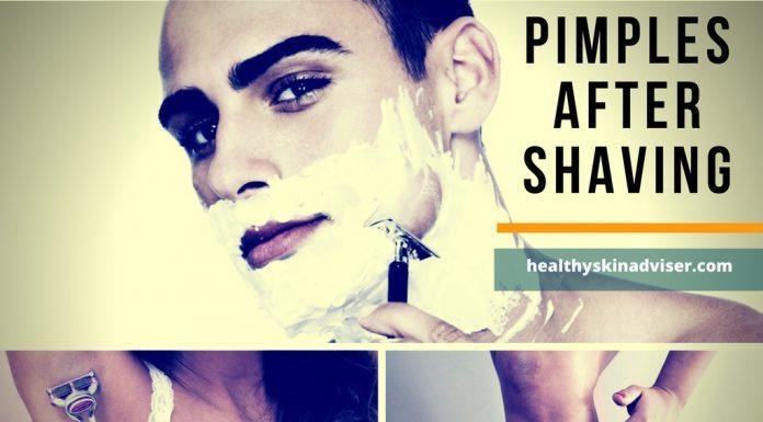pimples after shaving