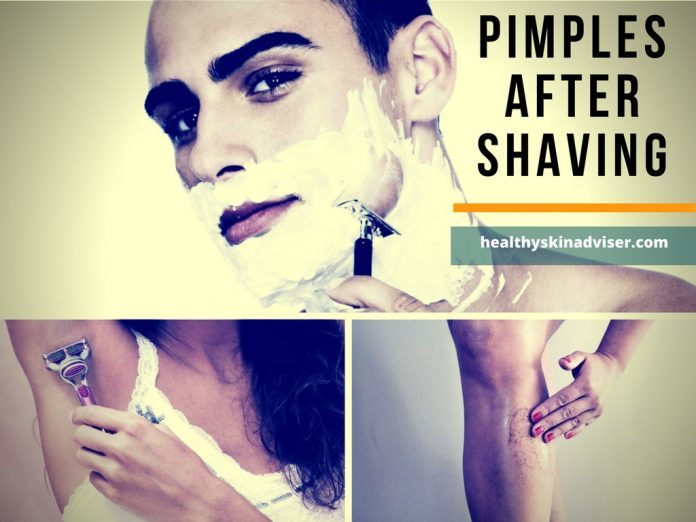 pimples after shaving