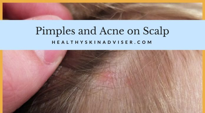 Pimples on Scalp and Acne on Scalp
