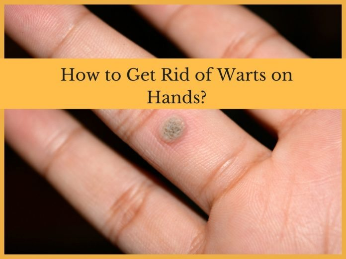 How to Get Rid of Warts on Hands?
