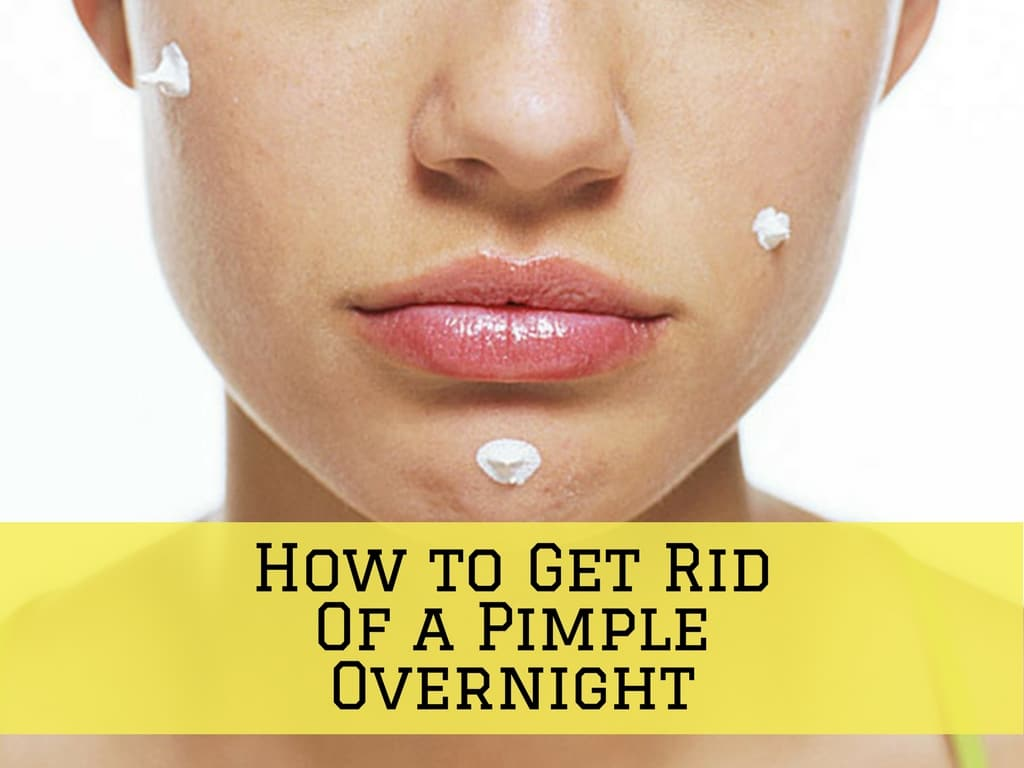 How To Fix A Pimple Overnight
