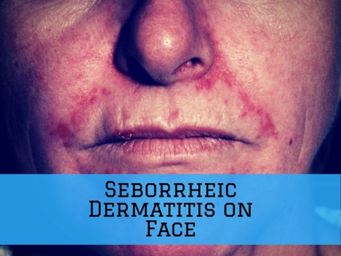 Seborrheic Dermatitis on Face