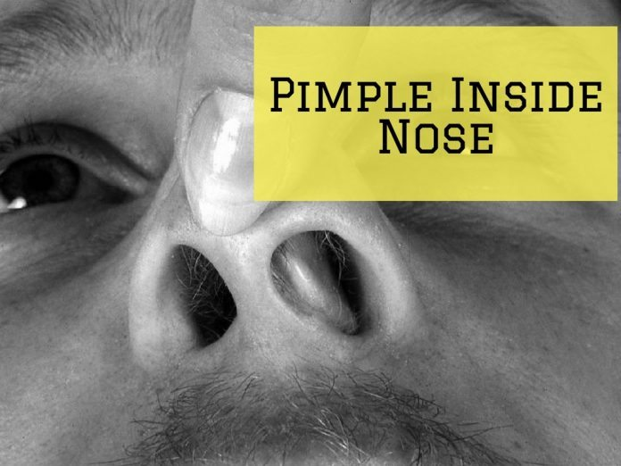 Pimple Inside Nose