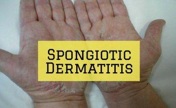 Spongiotic Dermatitis