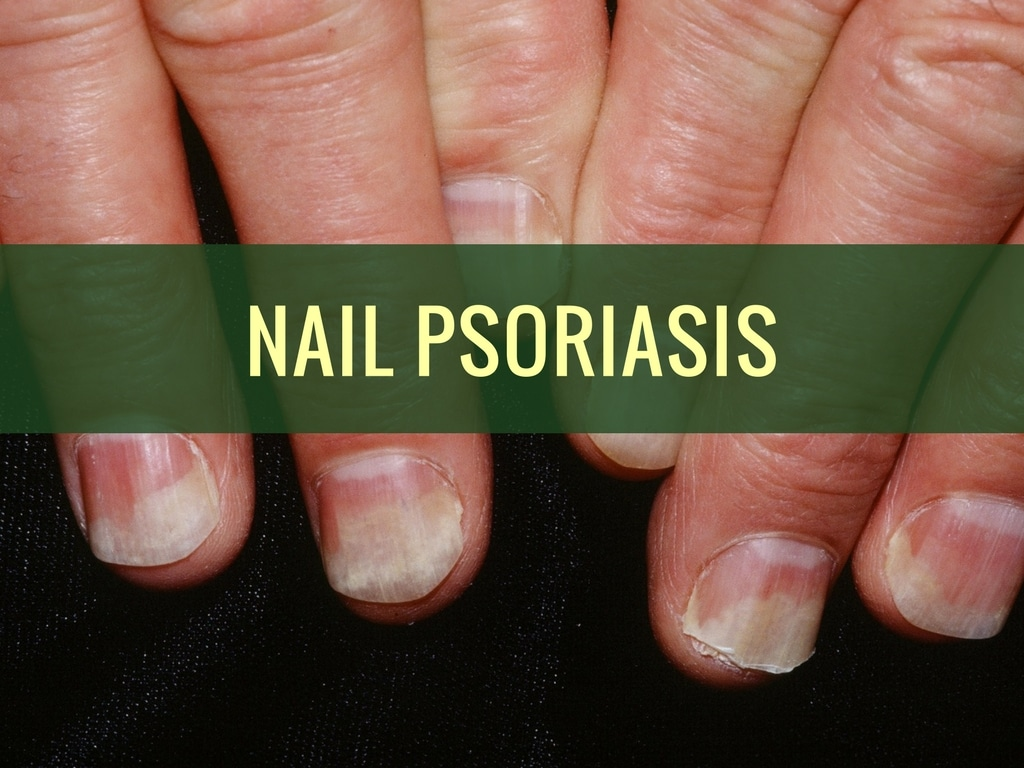 How To Treat Nail Psoriasis Naturally