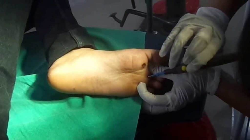 Electro-cautery for flat warts