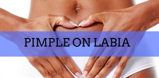 pimple on labia