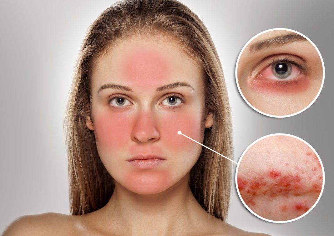 Rosacea Face Natural Treatment