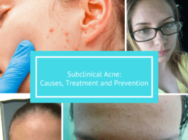 Subclinical Acne