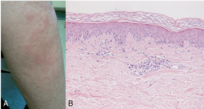 perivascular dermatitis