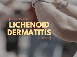 Lichenoid Dermatitis