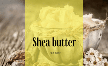 Shea butter good for acne